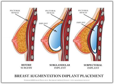 breast augmentation graphic